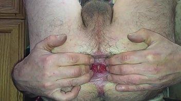anal gape and prolapse.